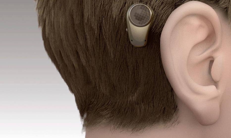 Aparelho que recupera a audição tem implante e processador